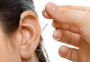 AcuDetox_Auricular_Acupuncture